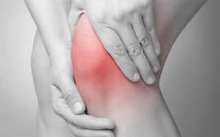 Что нельзя есть при артрозе суставов рук?