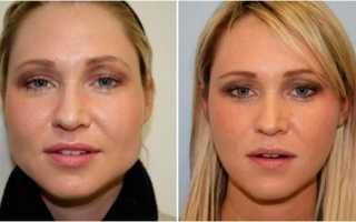 Что надо делать чтобы щеки похудели?