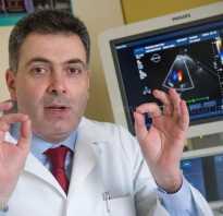 Правила бега для начинающих кардиомиопатия