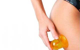 Какие банки для массажа лучше силиконовые или резиновые?
