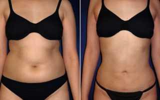 Как убрать подкожный жир на животе в домашних условиях у женщин быстро?
